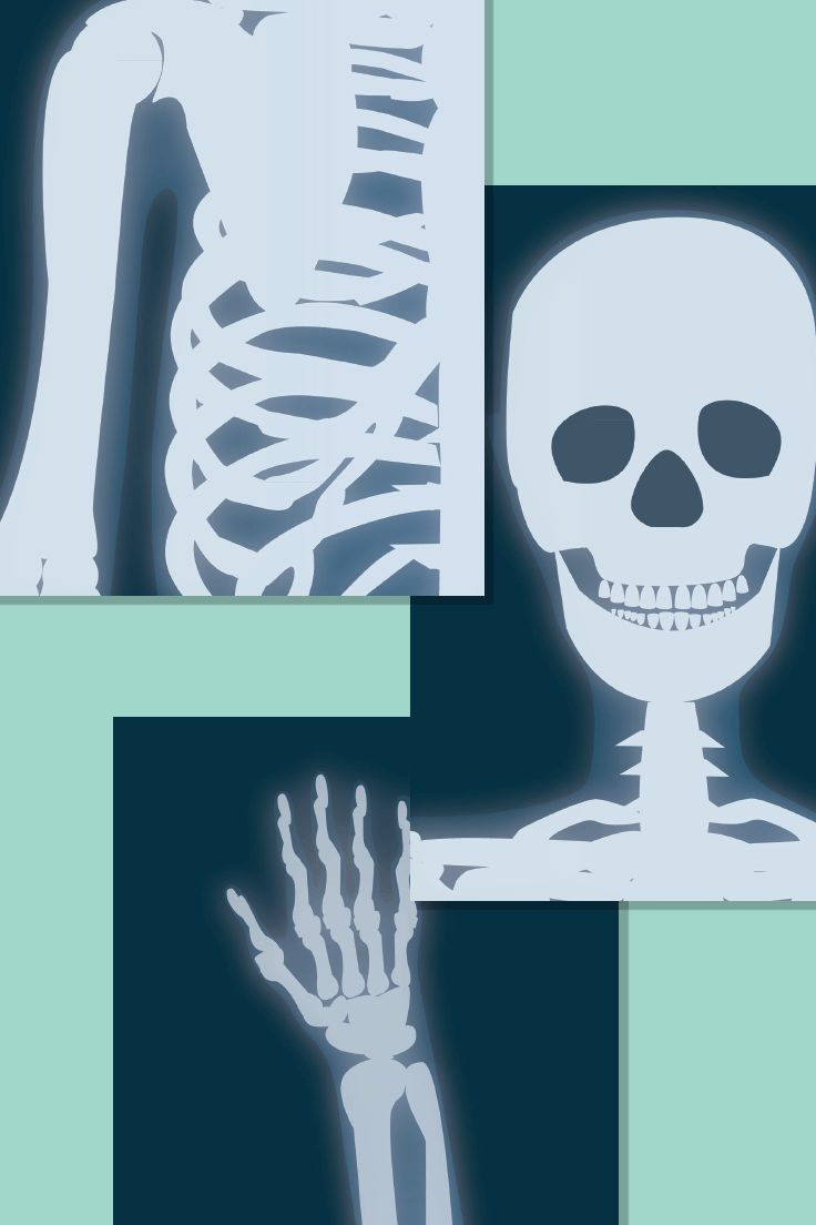 Illustrated X-Ray Posters